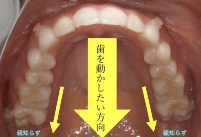 歯磨き 抜歯 後